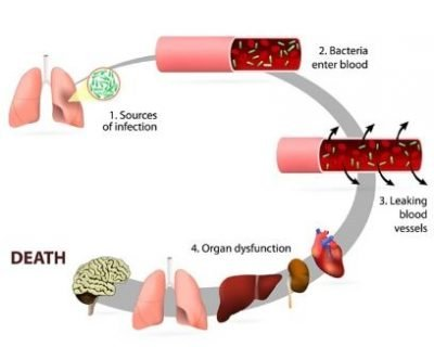 Effects Of Sepsis