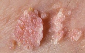 Natural Remedies for HPV