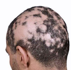 Natural Remedies for Alopecia
