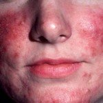 Rosacea Natural Remedies