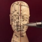 Acupuncture for Anxiety Treatment