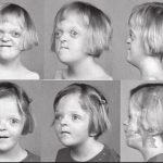 How Do You Inherit Apert Syndrome?