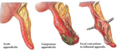 Main Cause Of Appendicitis