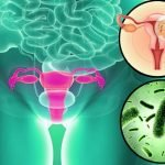 How Do You Get Rid Of Bacterial Vaginosis Or BV Naturally?