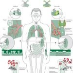 What Commonly Leads To Immune Deficiency?