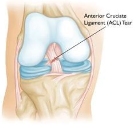 How Do You Treat A Sprained ACL Anterior Cruciate Ligament