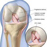 What is a sprained Anterior Cruciate Ligament ACL