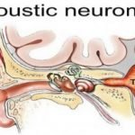 Can An Acoustic Neuroma Be Fatal?