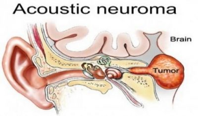 acousticneuroma