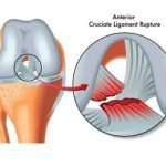 Can A Torn ACL Anterior Cruciate Ligament Heal Without Surgery