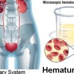 What Would Cause Blood In Urine?