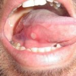 How Do You Avoid Getting Canker Sores?