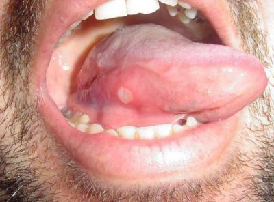 Canker Sores of the Tongue