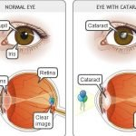 What Is The Cause Of Cataracts In The Eye?