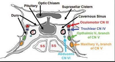 Cerebral Venous Sinus Thrombosis