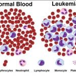 How Long Can You Live With Chronic Lymphocytic Leukemia?