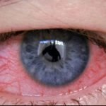 How Long Does Conjunctivitis Take To Go Away?