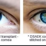 How Safe Is A Cornea Transplant?