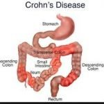 Is Crohn's Disease A Disability?
