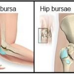 Why Do You Get Bursitis?