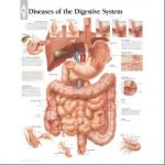 What Are The Diseases In Digestive System?
