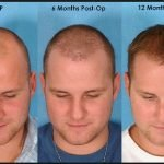 How Does Hair Transplant Work?