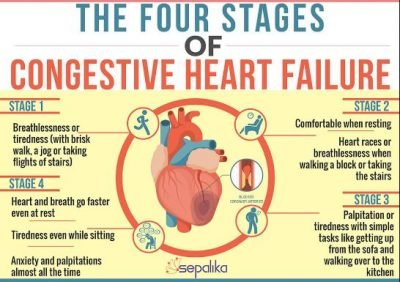 Stages of Congestive Heart Failure