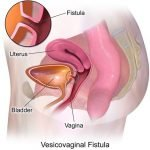 What is the cause of Vulvovaginitis?