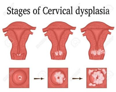 stages of Cervical Dysplasia