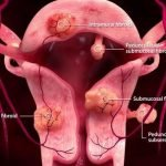 What Is The Treatment For Uterine Fibroids?