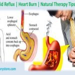 Is There A Difference Between GERD And Acid Reflux?