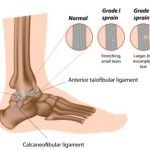 What Should I Do With A Sprained Ankle?