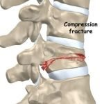 Is It Possible To Have A Fractured Spine?