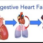 What Are The 4 Stages Of Congestive Heart Failure?