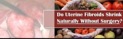 Foods For Uterine Fibroids