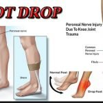 What Is Foot Drop And What Causes It?