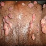 What Do Genital Warts Look And Feel Like?