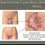 Can You Get Genital Warts From HPV?