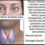What Is The Main Cause Of Graves Disease?