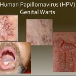 Which HPV Virus Causes Genital Warts?