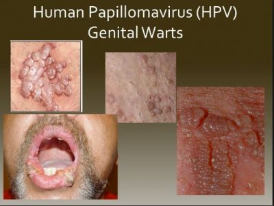HPV Causes Genital Warts
