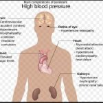 What Can Cause Your Blood Pressure To Go Up?