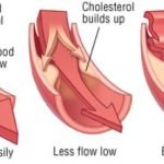 Is There A Difference Between Hyperlipidemia And Hypercholesterolemia?