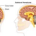 How Do You Treat A Hematoma?