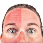 What Is The Best Treatment For Sunburn?