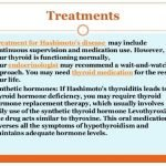 What Is The Best Treatment For Hashimoto Disease?