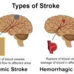 What Is The Cause Of A Stroke?