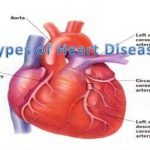 What Are The Different Types Of Heart Disease?