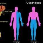 What Is A Paraplegic And A Quadriplegic?
