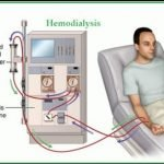 Can Dialysis Cure Kidney Problem?